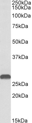 HOXA5 antibody (1 ug/ml) staining of Mouse Kidney lysate (35 ug protein in RIPA buffer). Primary incubation was 1 hour. Detected by chemiluminescence.