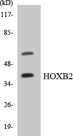 Western blot analysis of the lysates from HUVECcells using HOXB2 antibody.