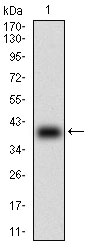 Western blot using B2M monoclonal antibody against human B2M (AA: 21-100) recombinant protein. (Expected MW is 35.4 kDa)