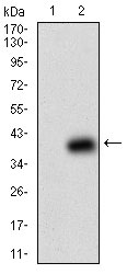Western blot using B2M monoclonal antibody against HEK293 (1) and B2M (AA: 21-100)-hIgGFc transfected HEK293 (2) cell lysate.