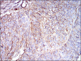IHC of paraffin-embedded ovarian cancer tissues using B2M mouse monoclonal antibody with DAB staining.