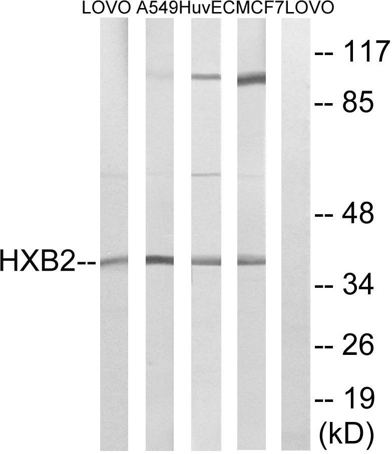 Western blot analysis of lysates from MCF-7, HUVEC, A549, and LOVO cells, using HOXB2 Antibody. The lane on the right is blocked with the synthesized peptide.