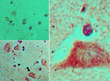 IHC of HOXB4 in formalin-fixed, paraffin-embedded human brain tissue using an isotype control (top left) and LS-C148633 (bottom left, right) at 5 ug/ml.