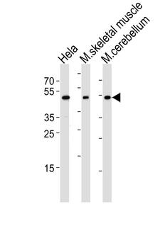 HOXC10 Antibody - Western blot of lysates from HeLa cell line, mouse skeletal muscle and mouse cerebellum tissue lysate(from left to right), using Mouse Hoxc10 Antibody. Antibody was diluted at 1:1000 at each lane. A goat anti-rabbit IgG H&L (HRP) at 1:5000 dilution was used as the secondary antibody. Lysates at 35ug per lane.