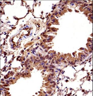 HOXC10 Antibody - Mouse Hoxc10 Antibody immunohistochemistry of formalin-fixed and paraffin-embedded mouse lung tissue followed by peroxidase-conjugated secondary antibody and DAB staining.