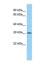 HOXC11 antibody Western blot of Mouse Pancreas lysate. Antibody concentration 1 ug/ml.  This image was taken for the unconjugated form of this product. Other forms have not been tested.