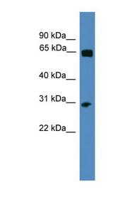 HOXC12 antibody Western blot of ACHN lysate. This image was taken for the unconjugated form of this product. Other forms have not been tested.