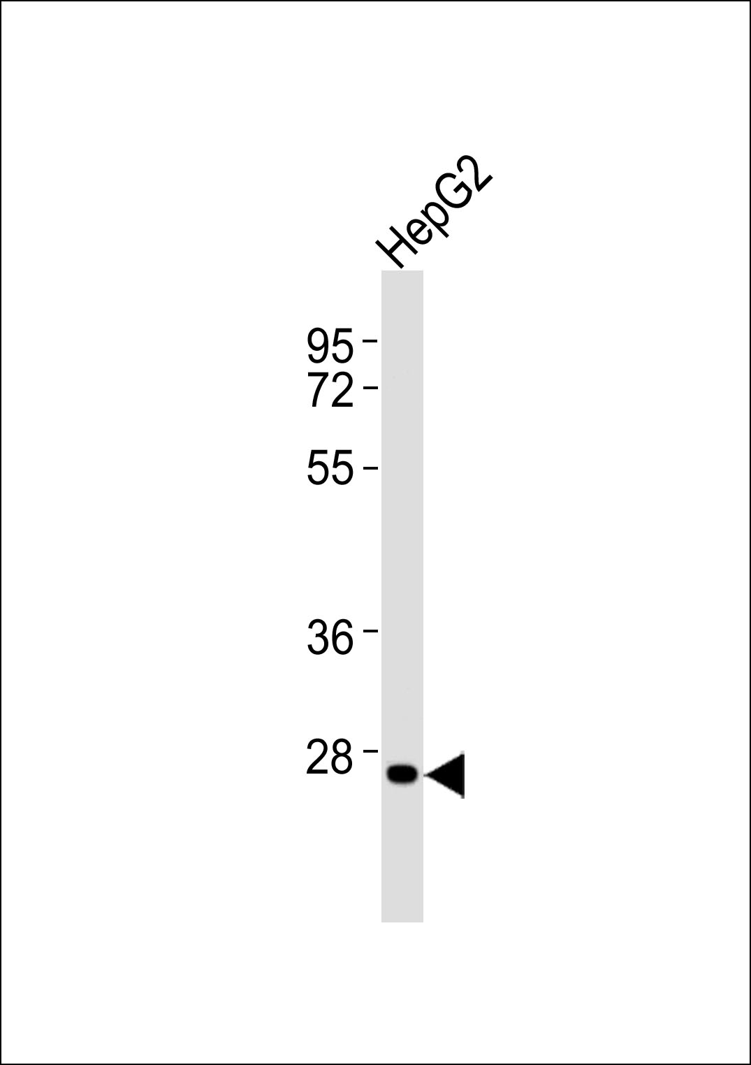 Anti-HOXC12 Antibody at 1:1000 dilution + HepG2 whole cell lysates Lysates/proteins at 20 ug per lane. Secondary Goat Anti-Rabbit IgG, (H+L),Peroxidase conjugated at 1/10000 dilution Predicted band size : 30 kDa Blocking/Dilution buffer: 5% NFDM/TBST.