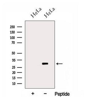HOXC4 Antibody - Western blot analysis of extracts of HeLa cells using HOXC4 antibody. The lane on the left was treated with blocking peptide.
