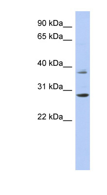 HOXC5 antibody Western blot of ACHN lysate. This image was taken for the unconjugated form of this product. Other forms have not been tested.