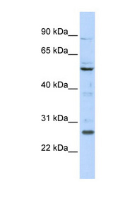 HOXC5 antibody Western blot of 293T cell lysate. This image was taken for the unconjugated form of this product. Other forms have not been tested.