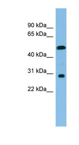 HOXC8 antibody Western blot of COLO205 cell lysate. This image was taken for the unconjugated form of this product. Other forms have not been tested.