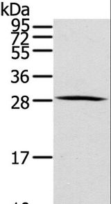 Western blot analysis of Human thyroid cancer tissue, using HOXC8 Polyclonal Antibody at dilution of 1:200.