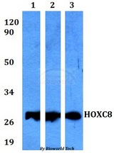 Western blot of HOXC8 antibody at 1:500 dilution. Lane 1: HEK293T whole cell lysate. Lane 2: Raw264.7 whole cell lysate. Lane 3: PC12 whole cell lysate.