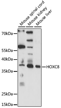 Western blot analysis of extracts of various cell lines, using HOXC8 antibody at 1:1000 dilution. The secondary antibody used was an HRP Goat Anti-Rabbit IgG (H+L) at 1:10000 dilution. Lysates were loaded 25ug per lane and 3% nonfat dry milk in TBST was used for blocking. An ECL Kit was used for detection and the exposure time was 1s.