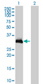 Western Blot analysis of HOXC9 expression in transfected 293T cell line by HOXC9 monoclonal antibody (M01), clone 2B12.Lane 1: HOXC9 transfected lysate(29.9 KDa).Lane 2: Non-transfected lysate.