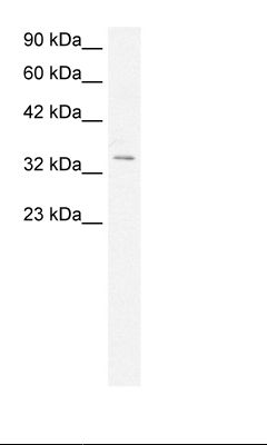 Fetal Muscle Lysate.  This image was taken for the unconjugated form of this product. Other forms have not been tested.
