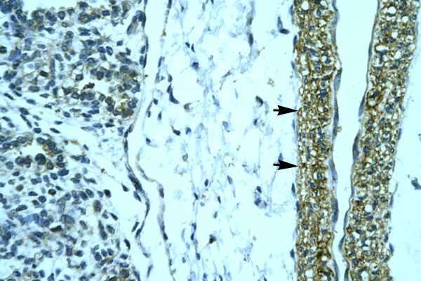HOXD12 antibody LS-C30686 IHC of formalin-fixed, paraffin-embedded human Smooth Muscle. Positive label: Vascular smooth muscle cells indicated with arrows. Antibody concentration 4-8 ug/ml. Magnification 400X.  This image was taken for the unconjugated form of this product. Other forms have not been tested.