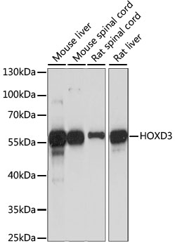 HOXD3 Antibody - Western blot analysis of extracts of various cell lines, using HOXD3 antibody at 1:1000 dilution. The secondary antibody used was an HRP Goat Anti-Rabbit IgG (H+L) at 1:10000 dilution. Lysates were loaded 25ug per lane and 3% nonfat dry milk in TBST was used for blocking. An ECL Kit was used for detection and the exposure time was 90S.