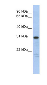 HOXD9 antibody Western blot of Fetal Spleen lysate. This image was taken for the unconjugated form of this product. Other forms have not been tested.
