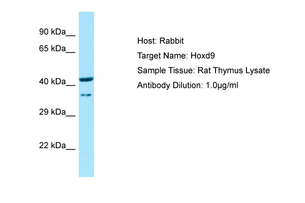 HOXD9 Antibody -  This image was taken for the unconjugated form of this product. Other forms have not been tested.