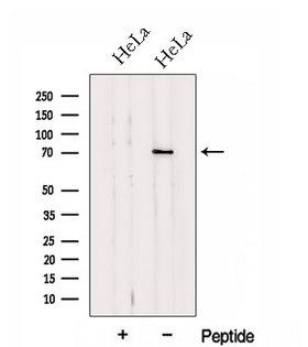 HP1BP3 Antibody - Western blot analysis of extracts of HeLa cells using HP1BP3 antibody. The lane on the left was treated with blocking peptide.