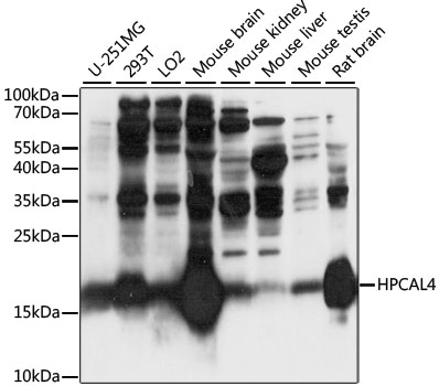 HPCAL4 Antibody - Western blot analysis of extracts of various cell lines, using HPCAL4 antibody at 1:1000 dilution. The secondary antibody used was an HRP Goat Anti-Rabbit IgG (H+L) at 1:10000 dilution. Lysates were loaded 25ug per lane and 3% nonfat dry milk in TBST was used for blocking. An ECL Kit was used for detection and the exposure time was 10s.