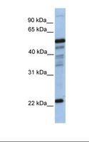 HPGDS Antibody - 721_B cell lysate. Antibody concentration: 1.0 ug/ml. Gel concentration: 12%.  This image was taken for the unconjugated form of this product. Other forms have not been tested.