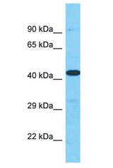 HPH2 / PHC2 antibody Western Blot of HT1080. Antibody dilution: 1 ug/ml.  This image was taken for the unconjugated form of this product. Other forms have not been tested.