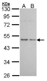 Sample (30 ug of whole cell lysate). A: A431. B: H1299. 10% SDS PAGE. HRH3 antibody diluted at 1:1000.