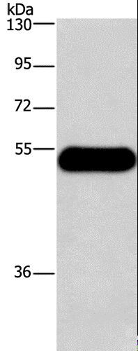Western blot analysis of Mouse brain tissue, using HRH3 Polyclonal Antibody at dilution of 1:750.