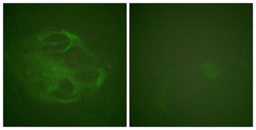 HRS / HGS Antibody - Immunofluorescence analysis of HeLa cells, using HRS Antibody. The picture on the right is blocked with the synthesized peptide.