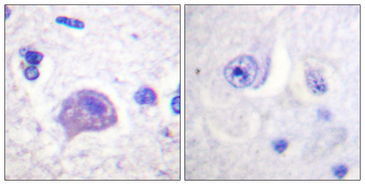 HRS / HGS Antibody - Immunohistochemistry analysis of paraffin-embedded human brain tissue, using HRS Antibody. The picture on the right is blocked with the synthesized peptide.