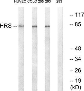 HRS / HGS Antibody - Western blot analysis of lysates from 293, COLO, and HUVEC cells, using HRS Antibody. The lane on the right is blocked with the synthesized peptide.