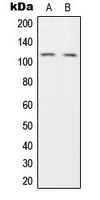 HRS / HGS Antibody - Western blot analysis of HGS expression in H1299 (A); HeLa (B) whole cell lysates.