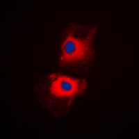 HRS / HGS Antibody - Immunofluorescent analysis of HGS staining in H1299 cells. Formalin-fixed cells were permeabilized with 0.1% Triton X-100 in TBS for 5-10 minutes and blocked with 3% BSA-PBS for 30 minutes at room temperature. Cells were probed with the primary antibody in 3% BSA-PBS and incubated overnight at 4 C in a humidified chamber. Cells were washed with PBST and incubated with a DyLight 594-conjugated secondary antibody (red) in PBS at room temperature in the dark. DAPI was used to stain the cell nuclei (blue).