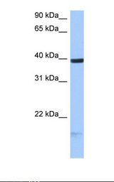 MCF7 cell lysate. Antibody concentration: 0.5 ug/ml. Gel concentration: 12%.  This image was taken for the unconjugated form of this product. Other forms have not been tested.
