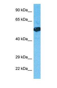 HS6ST3 Antibody - Western blot of H6ST3 Antibody with human Fetal Lung lysate.  This image was taken for the unconjugated form of this product. Other forms have not been tested.