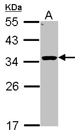 Sample (30 ug of whole cell lysate). A: Hep G2 . 12% SDS PAGE. HSD11B1 antibody diluted at 1:1000.