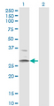 Western Blot analysis of HSD11B1 expression in transfected 293T cell line by HSD11B1 monoclonal antibody (M02A), clone 2C10.Lane 1: HSD11B1 transfected lysate (Predicted MW: 32.4 KDa).Lane 2: Non-transfected lysate.