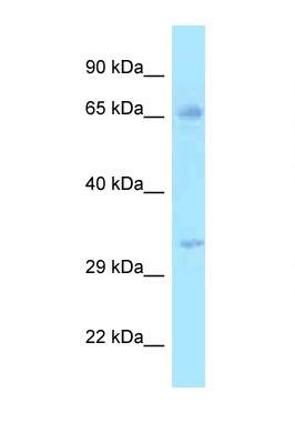 HSD17B3 antibody Western blot of 721_B Cell lysate. Antibody concentration 1 ug/ml.  This image was taken for the unconjugated form of this product. Other forms have not been tested.