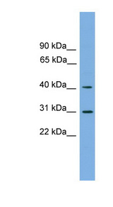 HSD3B7 antibody Western blot of OVCAR-3 cell lysate. This image was taken for the unconjugated form of this product. Other forms have not been tested.