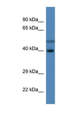 HSDL1 Antibody - HSDL1 antibody Western blot of Fetal Liver lysate. Antibody concentration 1 ug/ml.  This image was taken for the unconjugated form of this product. Other forms have not been tested.