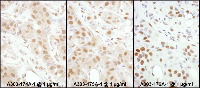 HSF1 Antibody - Detection of Human HSF1 by Immunohistochemistry. Samples: FFPE sections of human breast carcinoma. Antibody: Affinity purified rabbit anti-HSF1 used at a dilution of 1:1000. Detection: DAB.