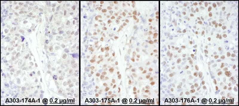 HSF1 Antibody - Detection of Human HSF1 by Immunohistochemistry. Samples: FFPE sections of human ovarian carcinoma. Antibody: Affinity purified rabbit anti-HSF1 used at a dilution of 1:1000 (0.2 ug/ml) (right). Detection: DAB.