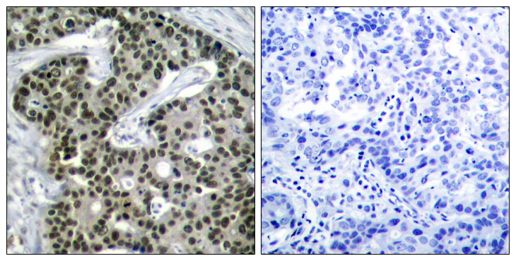 HSF1 Antibody - Immunohistochemistry analysis of paraffin-embedded human breast carcinoma, using HSF1 (Phospho-Ser303) Antibody. The picture on the right is blocked with the phospho peptide.