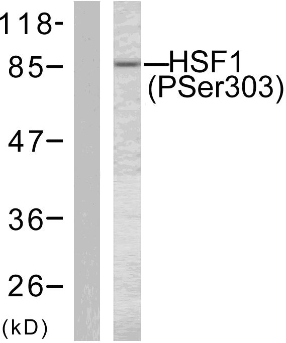 HSF1 Antibody - Western blot analysis of lysates from MCF7 cells treated with TNF-alpha 20ng/ml 30', using HSF1 (Phospho-Ser303) Antibody. The lane on the left is blocked with the phospho peptide.
