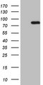 HEK293T cells were transfected with the pCMV6-ENTRY control (Left lane) or pCMV6-ENTRY HSF2 (Right lane) cDNA for 48 hrs and lysed. Equivalent amounts of cell lysates (5 ug per lane) were separated by SDS-PAGE and immunoblotted with anti-HSF2.
