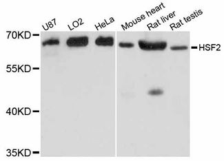 Western blot analysis of extracts of various cell lines, using HSF2 antibody at 1:3000 dilution. The secondary antibody used was an HRP Goat Anti-Rabbit IgG (H+L) at 1:10000 dilution. Lysates were loaded 25ug per lane and 3% nonfat dry milk in TBST was used for blocking. An ECL Kit was used for detection and the exposure time was 3s.