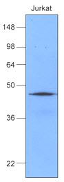 HSP40 Antibody - Cell lysates of Jurkat (50 ug) were resolved by SDS-PAGE, transferred to NC membrane and probed with anti-human Hsp40 (1:1000). Proteins were visualized using a goat anti-mouse secondary antibody conjugated to HRP and an ECL detection system.